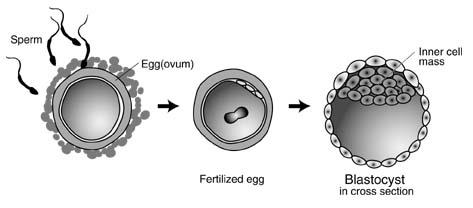 blastocyst